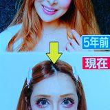 """【タレント】""""整形サイボーグ美女""""ヴァニラ、整形総額2億円超えを告白「息が吸いにくくなった」"""