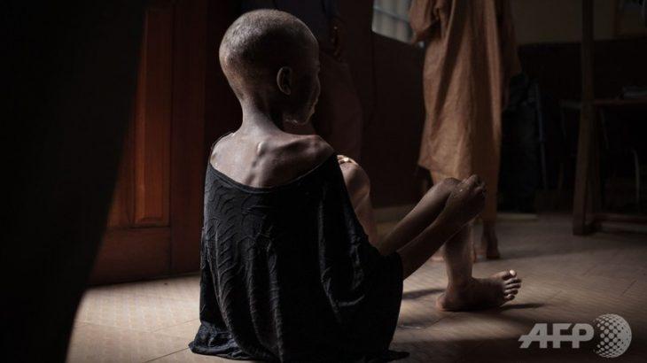 【中央アフリカ】飢える子どもたち、暴力と貧困が引き起こす飢餓危機 新生児死亡率世界一 子供3人に2人が人道的支援必要(写真)★2